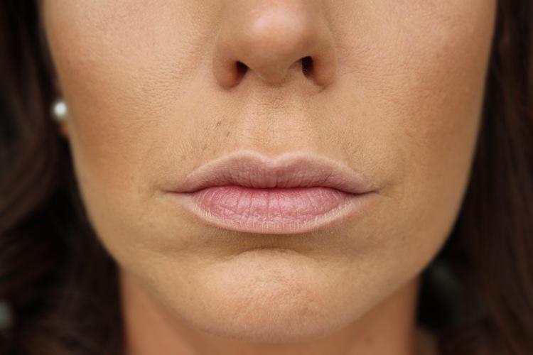 Lippenumrandung